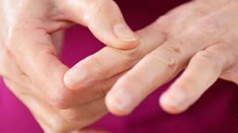 4 dolog amit könnyen megtehetsz a köszvény megelőzése érdekében!